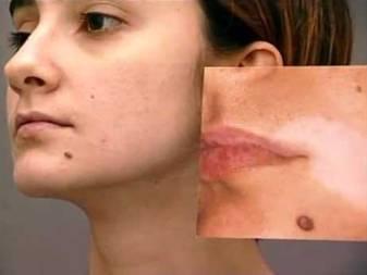 Белые пигментные пятна на лице