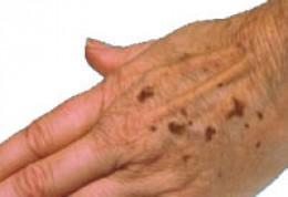 Пигментные пятна на руках. Как избавиться?
