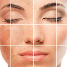 Причины гиперпигментации кожи