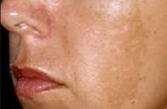 Гиперпигментация на щеках
